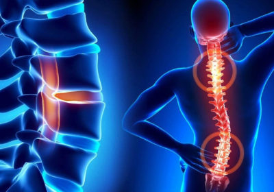 Read more about Persistent musculoskeletal pain sufferers invited to take part in research project